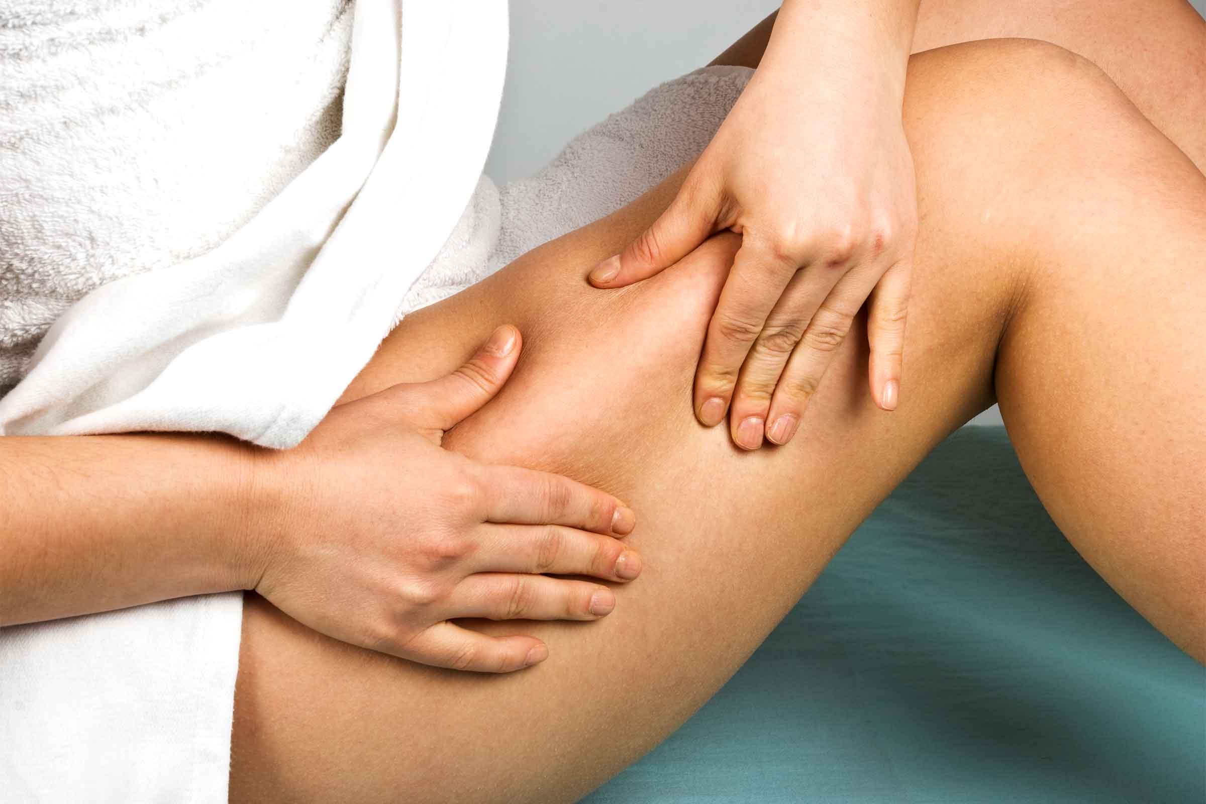 Celulit, nakopičena podkožna maščoba