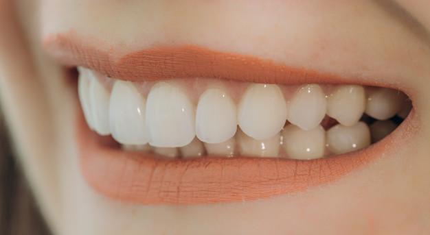 Zobne luske za lepši nasmeh