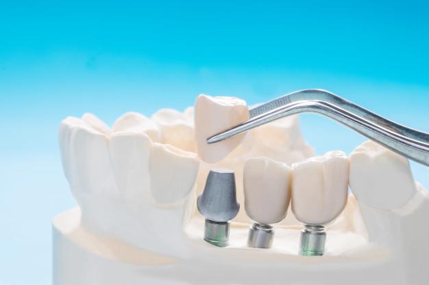 Celovita rekonstrukcija manjkajočega zobovja