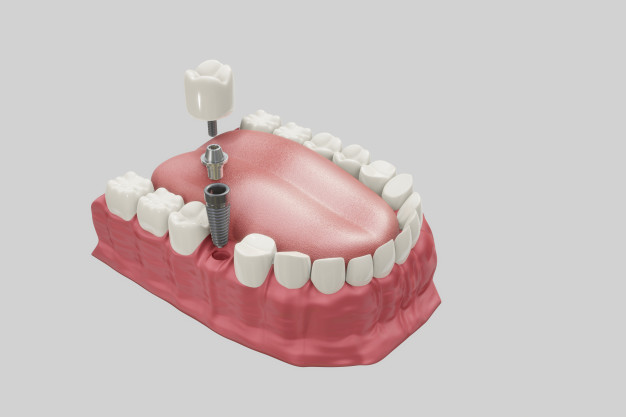 Implantati pri zobozdravnikih v Ljubljani