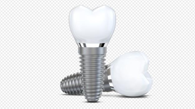Ortodontski aparat za zapeljiv nasmeh